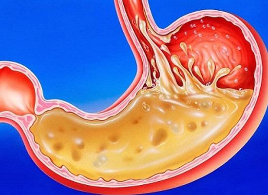 Axit trong dạ dày sẽ bị nước ion kiềm trung hòa