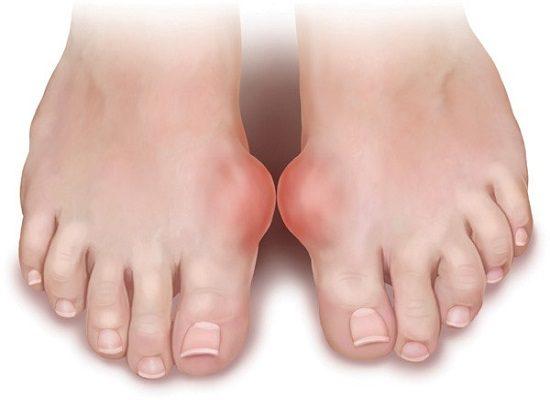 Hỗ trợ điều trị bệnh gout với nước ion kiềm