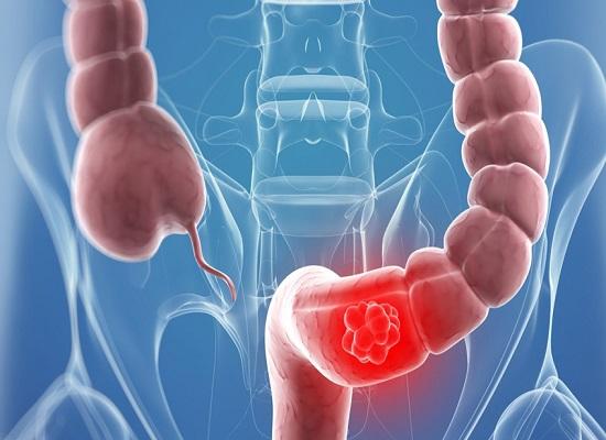 Nước ion kiềm có tác động gì đối với ung thư đại tràng