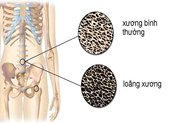 Thiếu canxi làm cho xương dễ bị gãy
