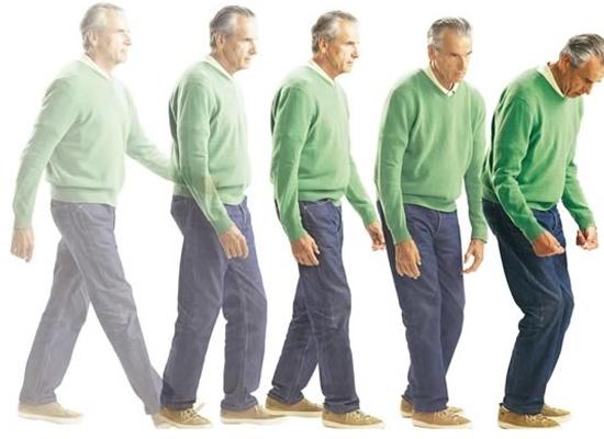 Bệnh Parkinson làm cho người bệnh gặp khó khăn trong việc đi lại
