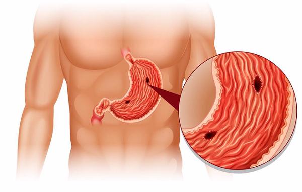 Bẹnh dạ dày