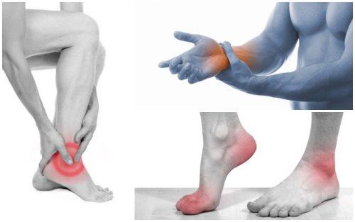 Biểu hiện bệnh Gout