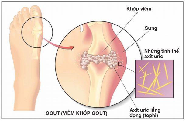 Bệnh Gout