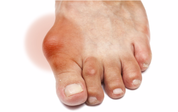 Điều trị gout