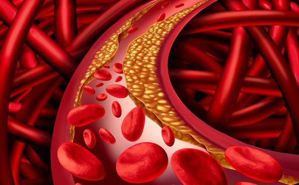 Vỏ bưởi có tác dụng hạ mỡ máu