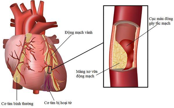 Bệnh nhân tim mạch đều được chỉ định dùng thuốc Nitroglycerin