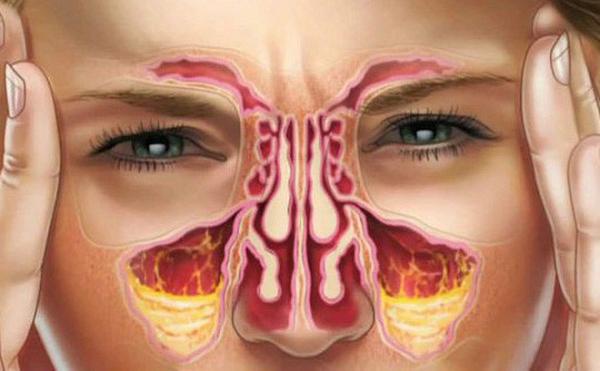 Nghẹt mũi xuất hiện do nhiều nguyên nhân như cảm cúm, viêm mũi, thời tiết thay đổi