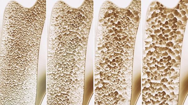 Thiếu vitamin D xương dễ bị xốp